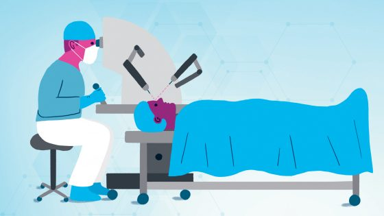 Illustration d'une opération avec intelligence artificielle